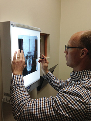NUCCA Chiropractic in Greensburg x-ray analysis